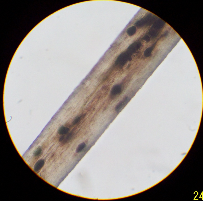 Cat hair microscope