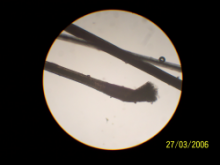 Black horse hair under a microscope showing pigmented follicle